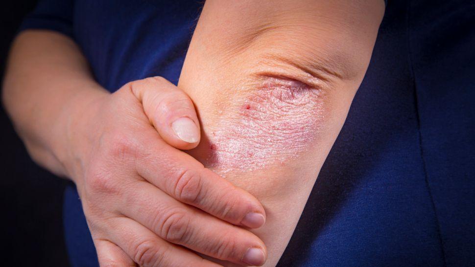 Псориазисът на скалпа се лекува с правилния шампоан | psorilin.hriciscova.com