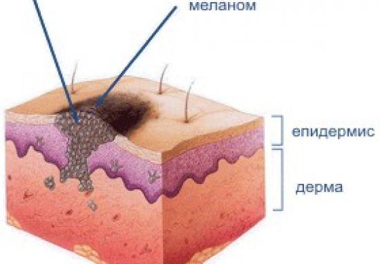 Меланом - рак на кожата - Puls.bg