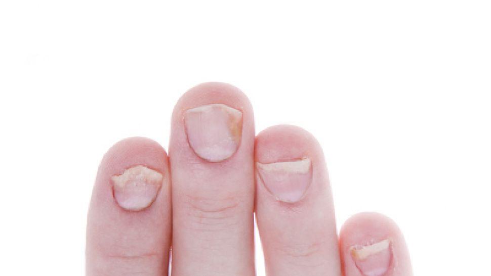 Как да предотвратим влошаването на псориазис? - psorilin.hriciscova.com