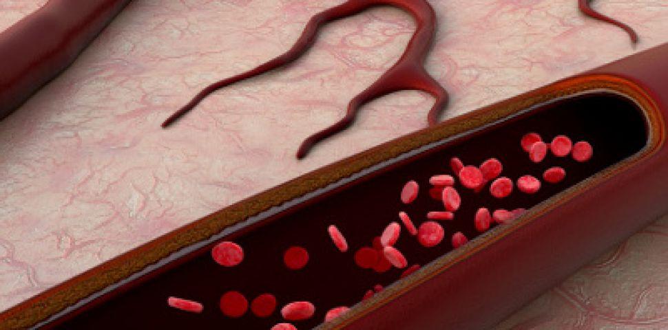 trateazăm oamenii varicose vene varicoză cum de a trata oamenii