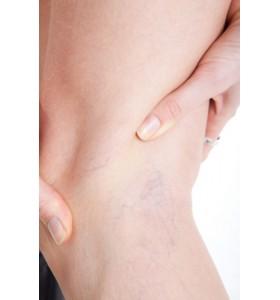 Дали подуването на краката е заради разширени вени?!