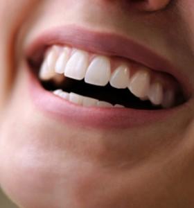 Какво показва кървенето на венците?
