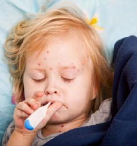 Варицела - при деца протича по-леко