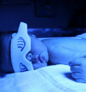 Неонатална жълтеница - диагностика и лечение