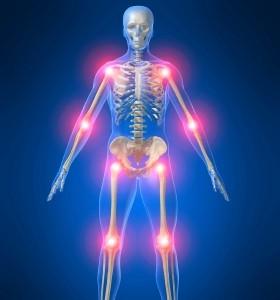 5 % от пациентите с псориазис развиват псориатичен артрит