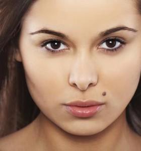5 indicadores que podem distinguir moles para o cancro da pele