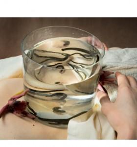 Медицинска пиявица – използва ли се още?