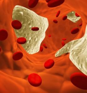 Атеросклероза – какво представлява заболяването? (видео)