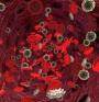 Ново лекарство за анемия разработват учени