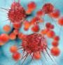 Кръвен тест ще предвижда лечението при рак на яйчниците