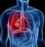 Рака на белия дроб ще се лекува с ново лекарство