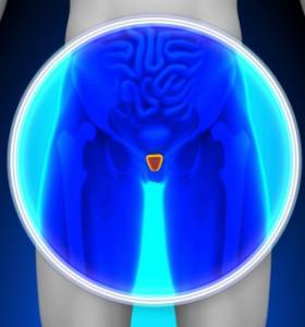 Рак на простатата – разбраха защо метастазира