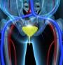 Рак на простатата се открива с нов уринен тест