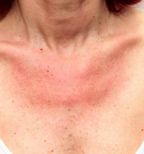 carcinoma de células escamosas da pele - novamente por causa do sol