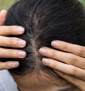 Митове за побеляването на косата