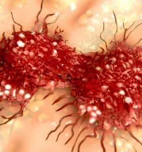 Имунотерапия - ключ към лечението на рак на яйчниците