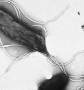 Инфекцията с Хеликобактер пилори – какво трябва да знаем?