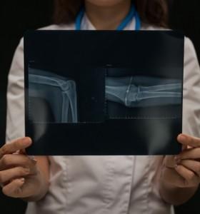 Безплатни прегледи при ревматолог