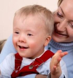 Пародонтални изяви при пациенти със Синдром на Даун