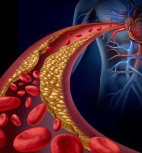 Витамини: Сърдечносъдово здраве и витаминен прием, 4