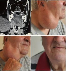 Отстраниха 20-сантиметров тумор от шията на мъж във ВМА