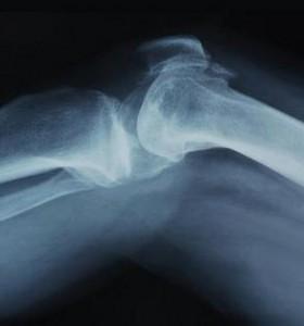 В Пирогов прегледи при усложнения след травма
