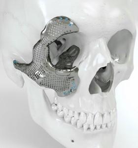 Операция с 3D имплант на лицето – за първи път у нас