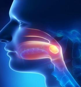 Достъпно за рака: Рак на гърлото - особености на рака на ларинкса