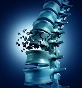Замърсеният въздух също фактор за остеопороза