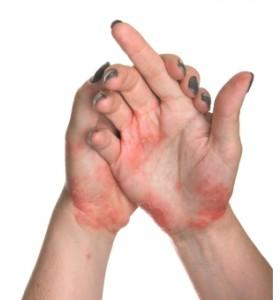 Артритът е може би една от най-тежките прояви на псориазиса