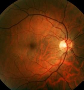 Застойни папили при преглед на очни дъна. На какво се дължи?