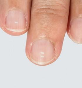 Болести, които да познаем по лунулата на нокътя
