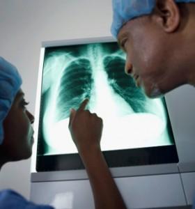 Трахея – провежда въздуха до белите дробове