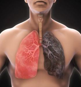 Стартира национална кампания за превенция на туберкулоза