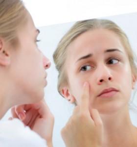 Синдром на поликистозните яйчници и акне