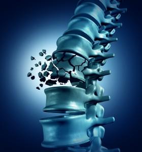 Първа помощ при травма на гръбначния стълб