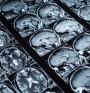 Хирургични заболявания на черепа - травма на мозъка
