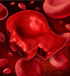 Сърповидно-клетъчна анемия - характеристики