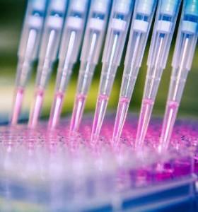 Холопрозенцефалия - вродена аномалия на мозъка