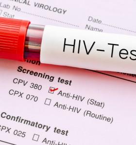 Нови 161 случая на ХИВ за годината