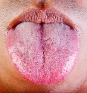 Бели петна по езика! Устна инфекция?
