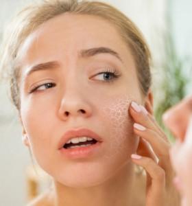 Как да преборим сухата кожа естествено? – 2 част