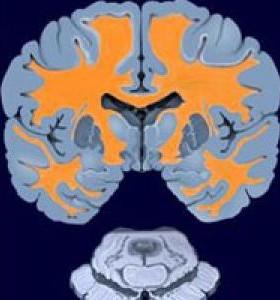 Тестостеронът може да помогне за лечение на Мултипленна Склероза при мъже