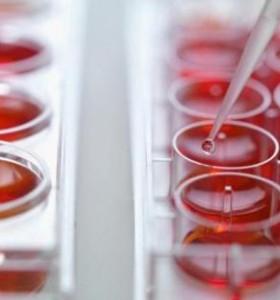 Как да тълкуваме показателите от общия кръвен анализ?