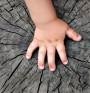 Причини за вродени аномалии на ръцете(І-ва част)