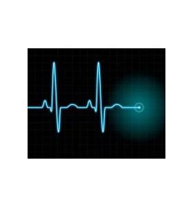 Екстрасистоли или когато сърцето прескача