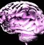 Сътресението на мозъка увеличава риска от Алцхаймер