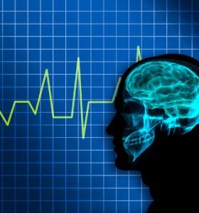 Инсултът при предсърдно мъждене се предотвратява с ново лечение