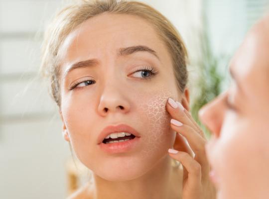 Снимка: Как да преборим сухата кожа естествено? – 2 част