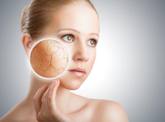 Снимка: Как да преборим сухата кожа естествено?